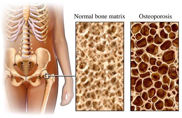 سنجش پوکی استخوان