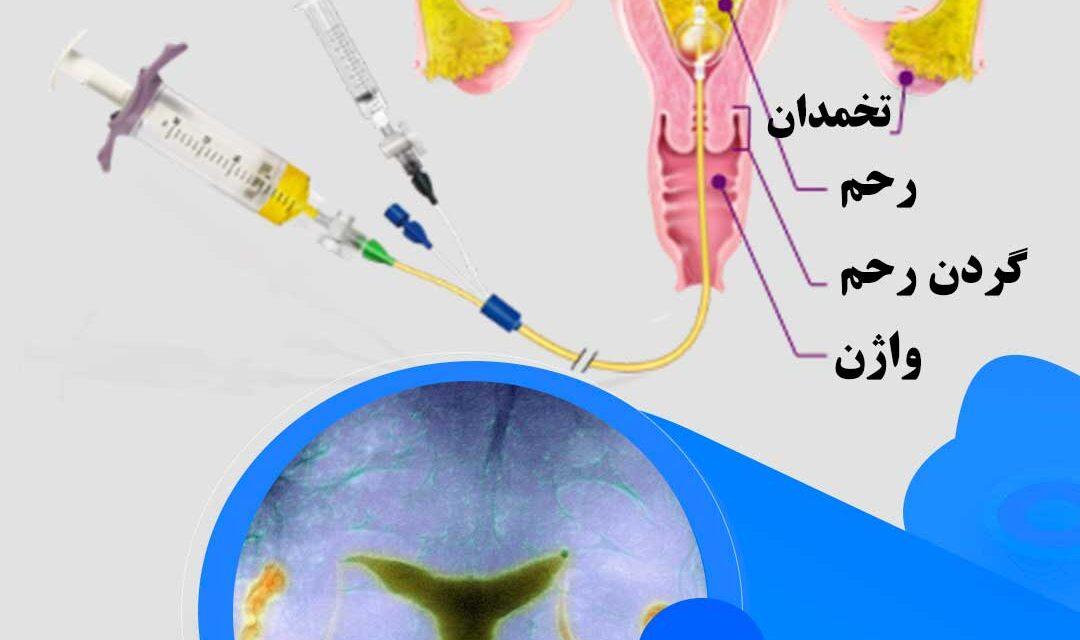 رادیولوژی تخصصی زنان