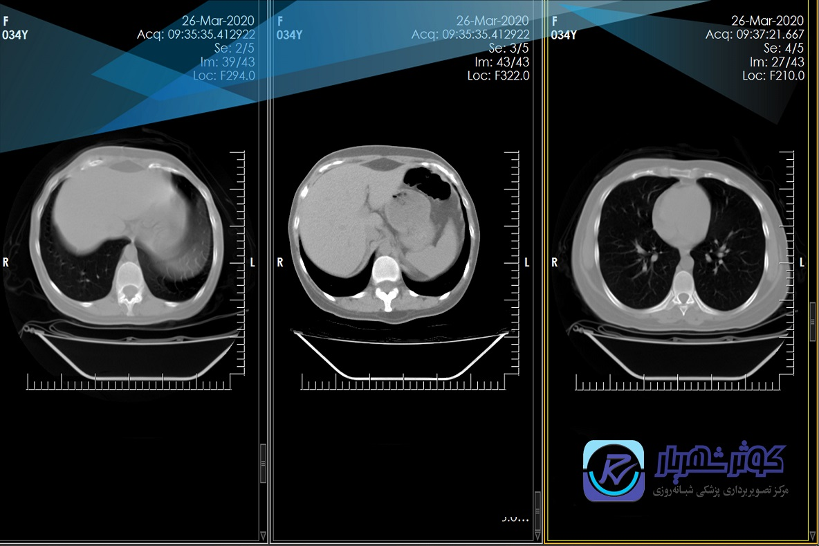 ct chest normal corona